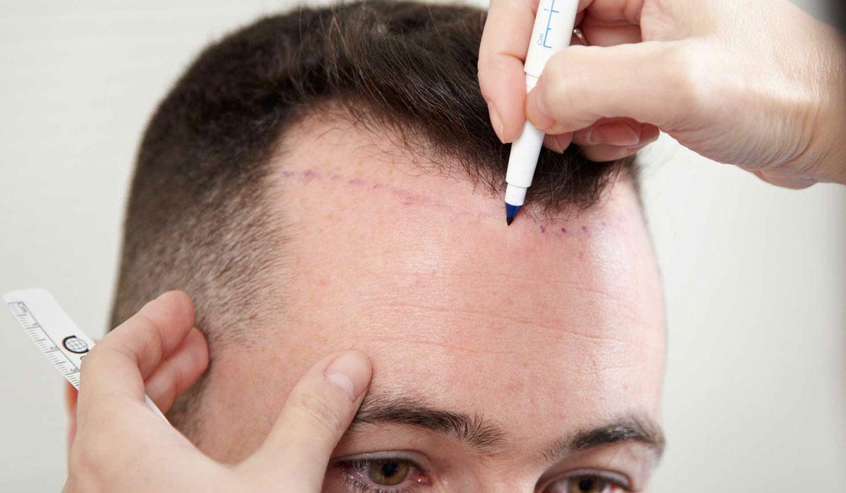 معلومات مهمة عن عملية زراعة الشعر بتقنية السفير